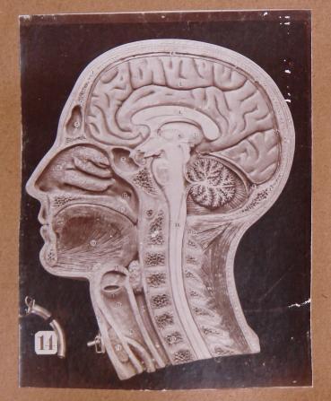 Anatomisches Modell, Schnitt durch Kopf und Hals, Einsatz einer Trachealkanüle