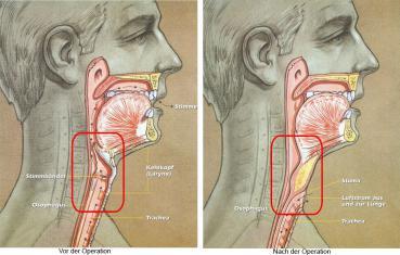 Vor und nach einer Laryngektomie