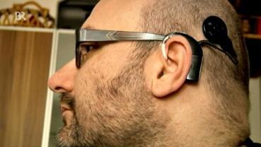Der Cyborg Enno Park mit Cochlea-Hörimplantat in einem Beitrag vom Bayern Rundfunk