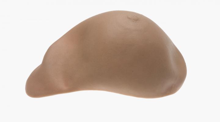 Brustepithese